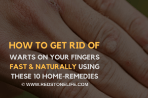 How To Get Rid Of Warts On Your Fingers FAST & Naturally - (10 Home Remedies) - redstonelife.com