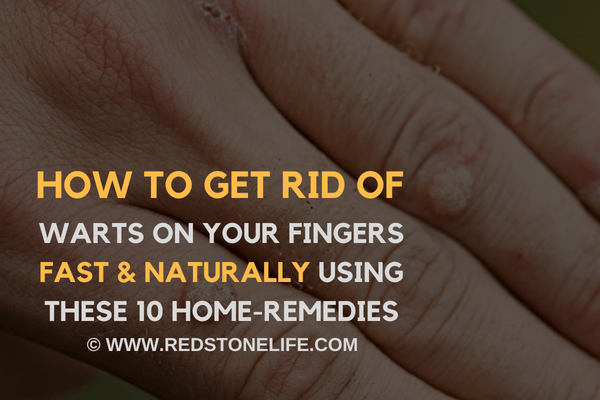 How To Get Rid Of Warts On Your Fingers FAST Naturally – (10 Home Remedies)