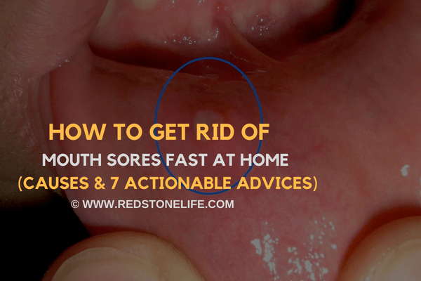 How to Get Rid of Mouth Sores Fast at Home – (7 Actionable Hacks)