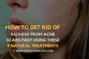 How to Get Rid of Redness from Acne Scars FAST USING these 9 NATURAL Treatments - redstonelife.com