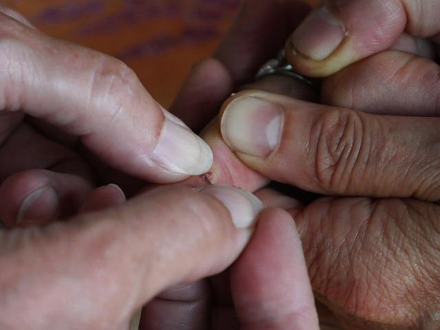 Finger injury