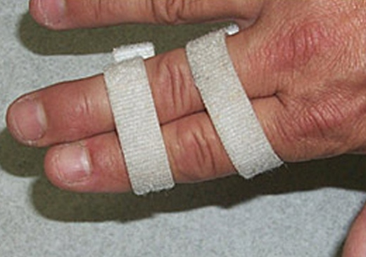Buddy tape your injured finger