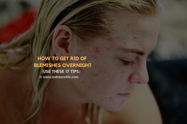 How to Get Rid of Blemishes Overnight: (Use These 17 Tips) - redstonelife.com