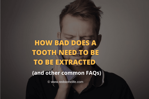 How Bad Does A Tooth Need To Be To Be Extracted & Common FAQs - Redstonelife.com