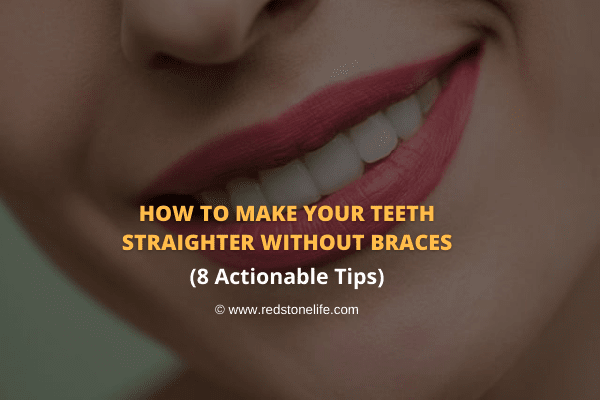 How to Make Your Teeth Straighter Without Braces: 8 WAYS! - Redstonelife.com