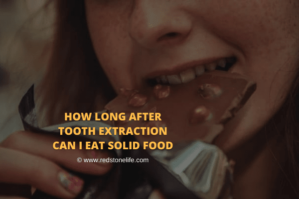 How Long After Tooth Extraction Can I Eat Solid Food