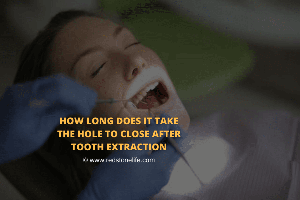 How Long Does It Take The Hole To Close After Tooth Extraction
