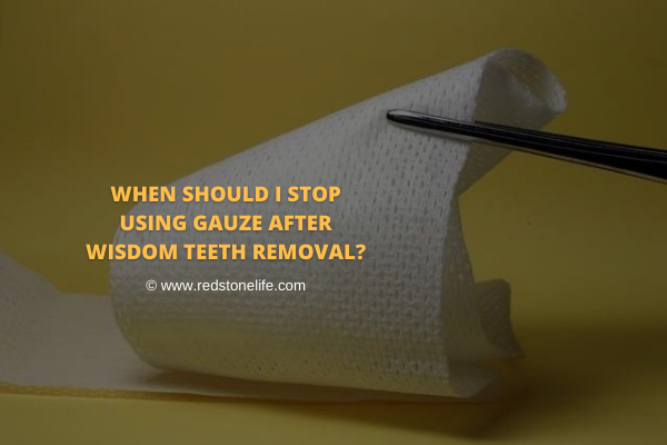 When Should I Stop Using Gauze After Wisdom Teeth Removal