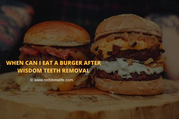 When Can I Eat A Burger After Wisdom Teeth Removal