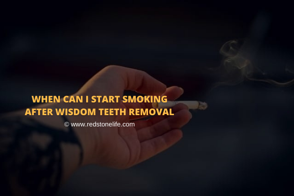 When Can I Start Smoking After Wisdom Teeth Removal