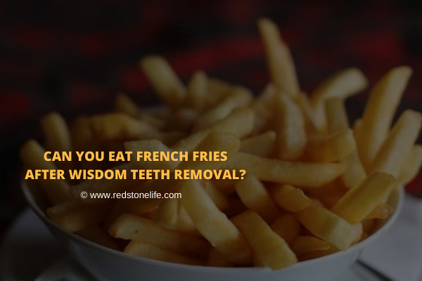 Can You Eat French Fries After Wisdom Teeth Removal - Redstonelife.com