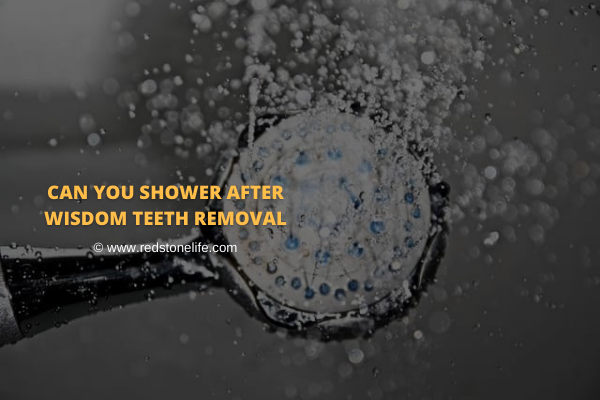 Can You Shower After Wisdom Teeth Removal - Redstonelife.com