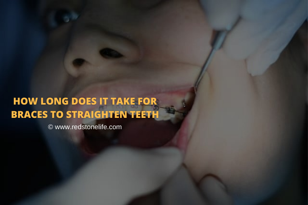 How Long Does It Take For Braces To Straighten Teeth: Find Out!