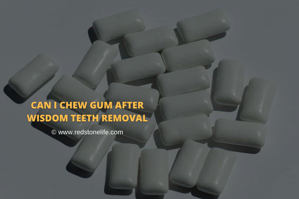 Can I Chew Gum After Wisdom Teeth Removal? - Let's Find! - Redstonelife.com