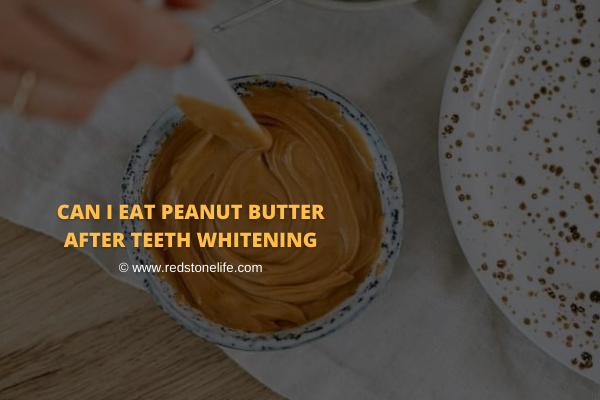 Can I Eat Peanut Butter After Teeth Whitening?