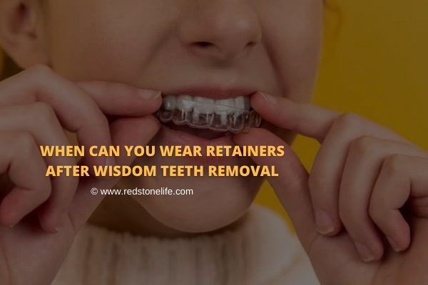 When Can You Wear Retainers After Wisdom Teeth Removal - Redstonelife.com