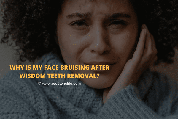 Why Is My Face Bruising After Wisdom Teeth Removal: What To Do?